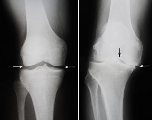 Колени в обратную сторону болезнь. Какие бывают болезни коленного сустава: список самых распространенных