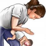Что делать если ребенок подавился!