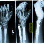 Возрастное разрушение костей удалось обратить одним уколом.