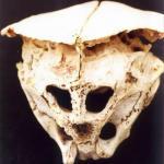 Древний череп, происхождение которого вызвало много вопросов.